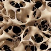 traitement naturel nacre ostéoporose