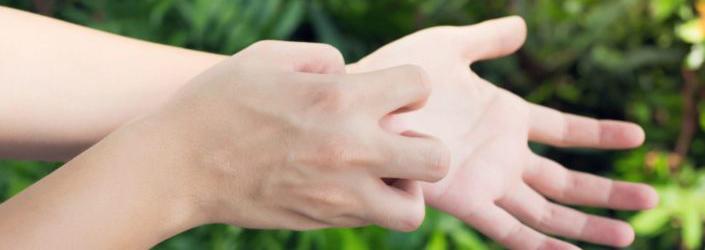 Personne qui se gratte à cause de l'eczema